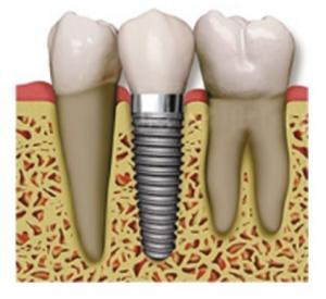 zubni_implantaty